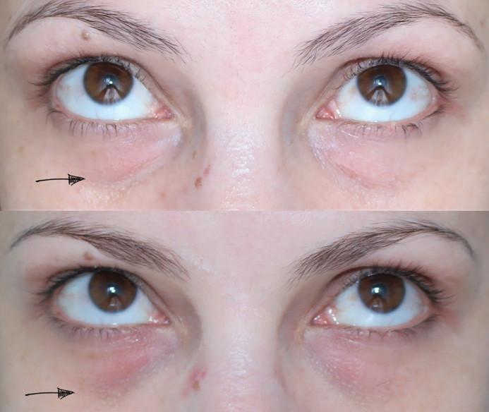 antes e depois preenchimento com ácido hialuronico