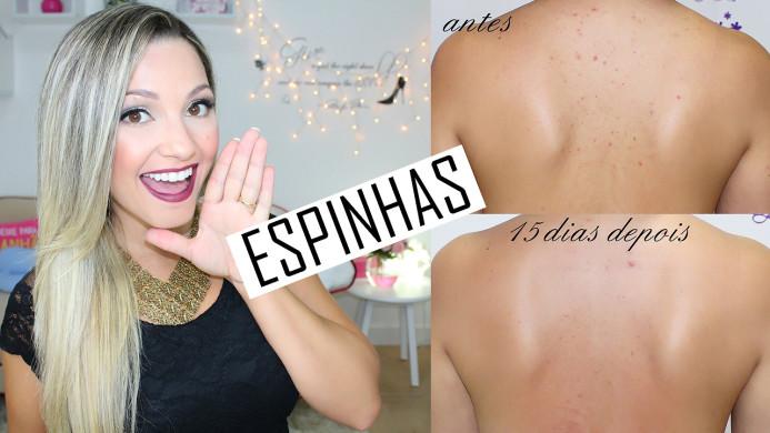 ESPINHAS