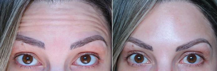 botox antes e depois testa