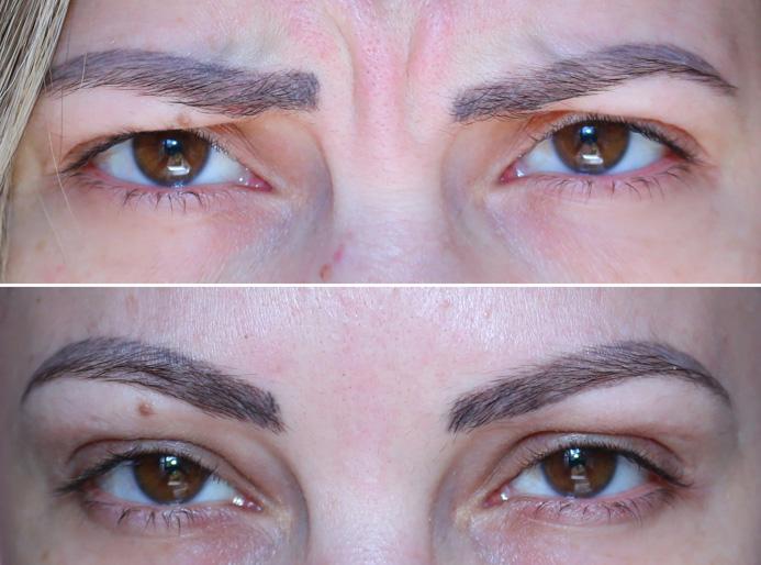 botox antes e depois sobrancelha